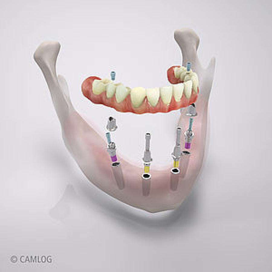 Computeranimation Implantate (Quelle: Camlog Bildmaterial)